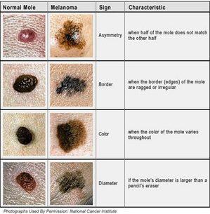 mole chart