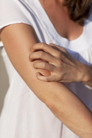 Scratching Arm