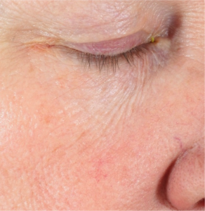 Neostrata Coomprehensive Retinol Eye Cream Before