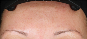 Neostrata Dual Acid Antiaging Peel After