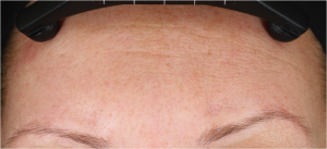 Neostrata Dual Acid Antiaging Peel Before