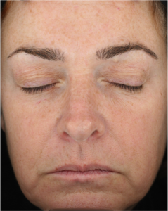 Neostrata Dual Acid Brightening Peel After